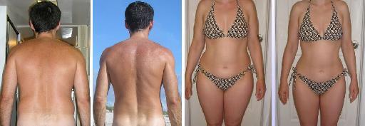 liposuctie binnenkant bovenbenen