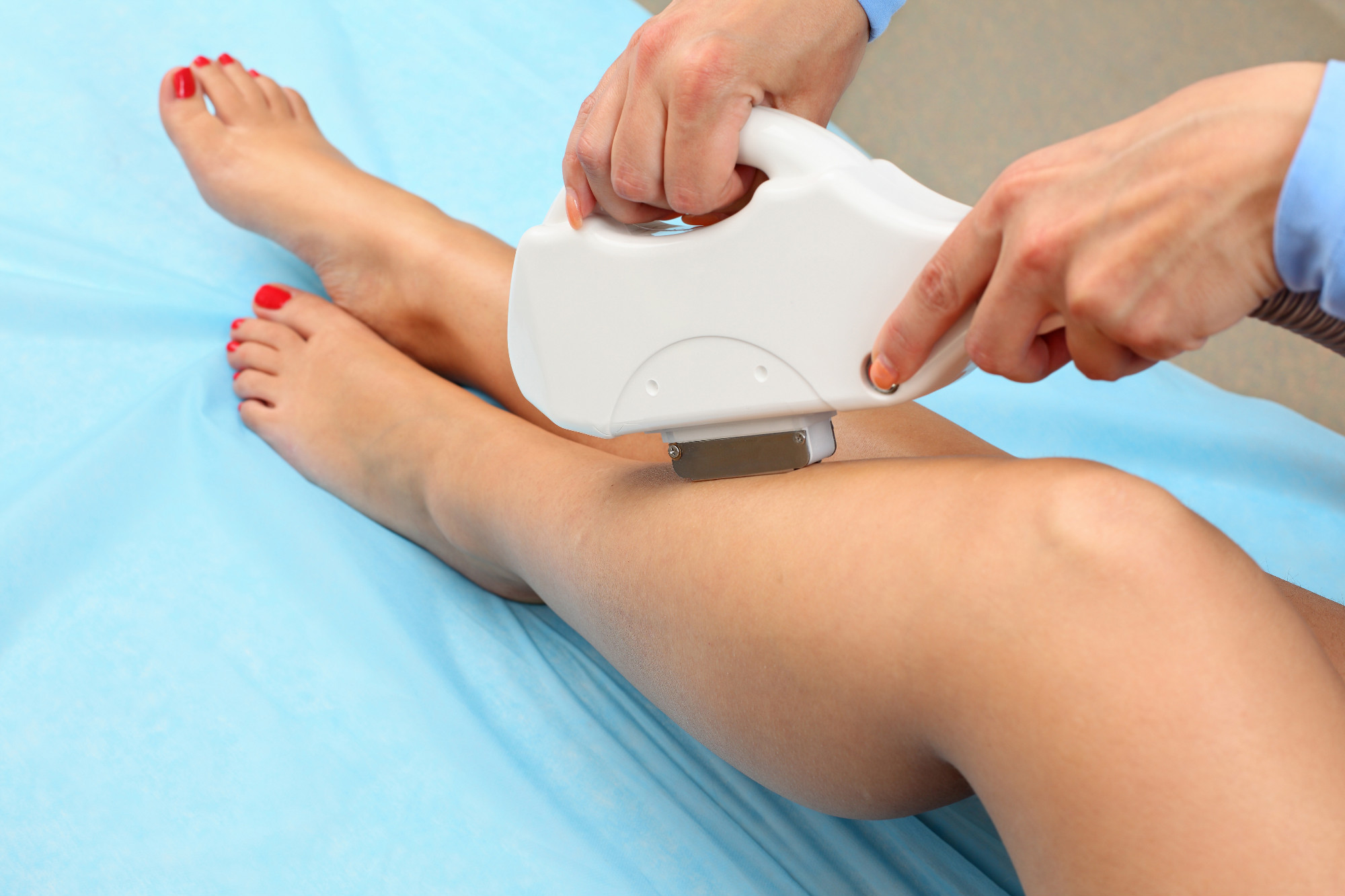 Elos/ definately hair removal - Beauty Clinic Lotus