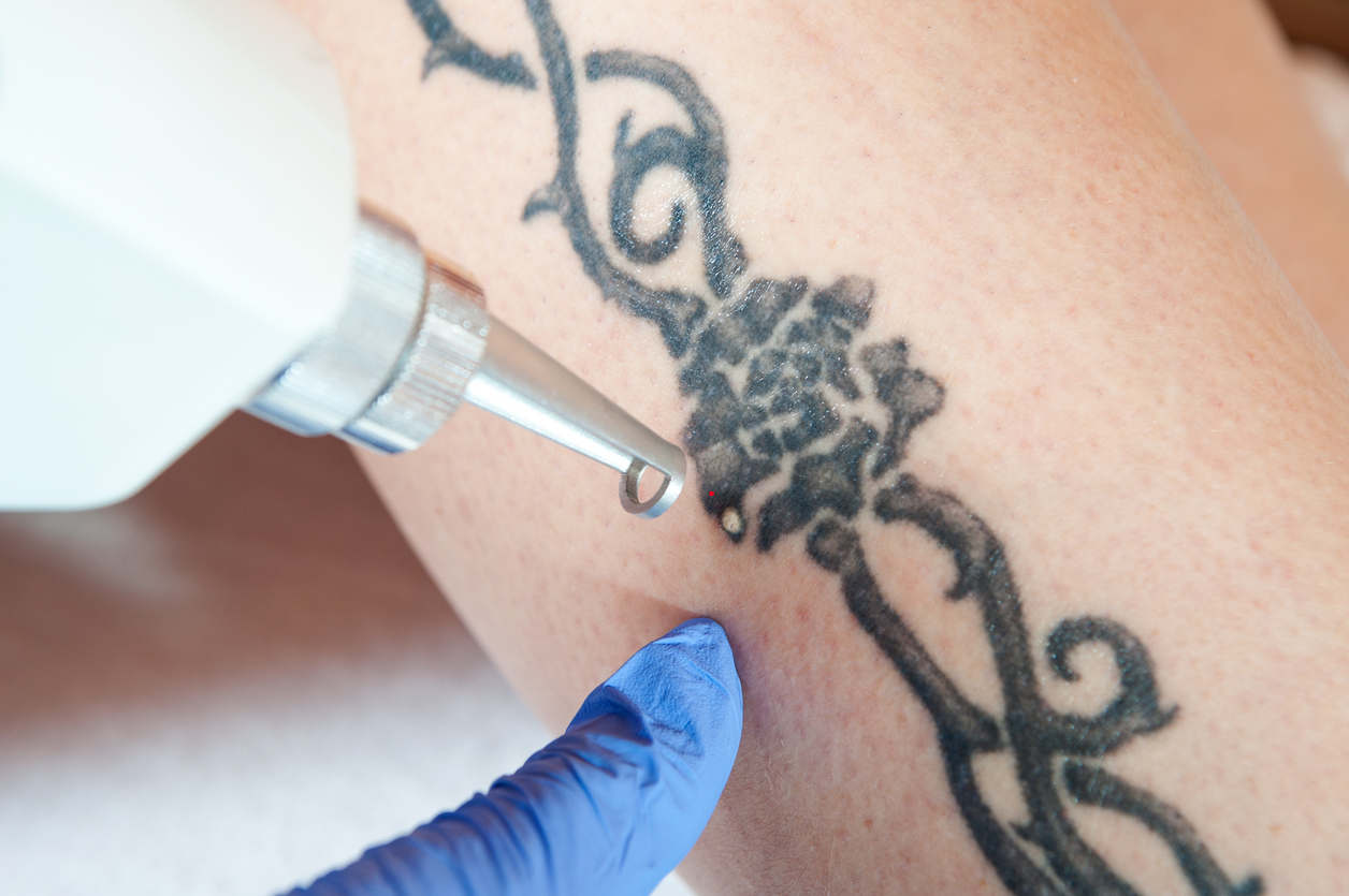 Tattoo Removal Amsterdam - Beauty Clinic Lotus
