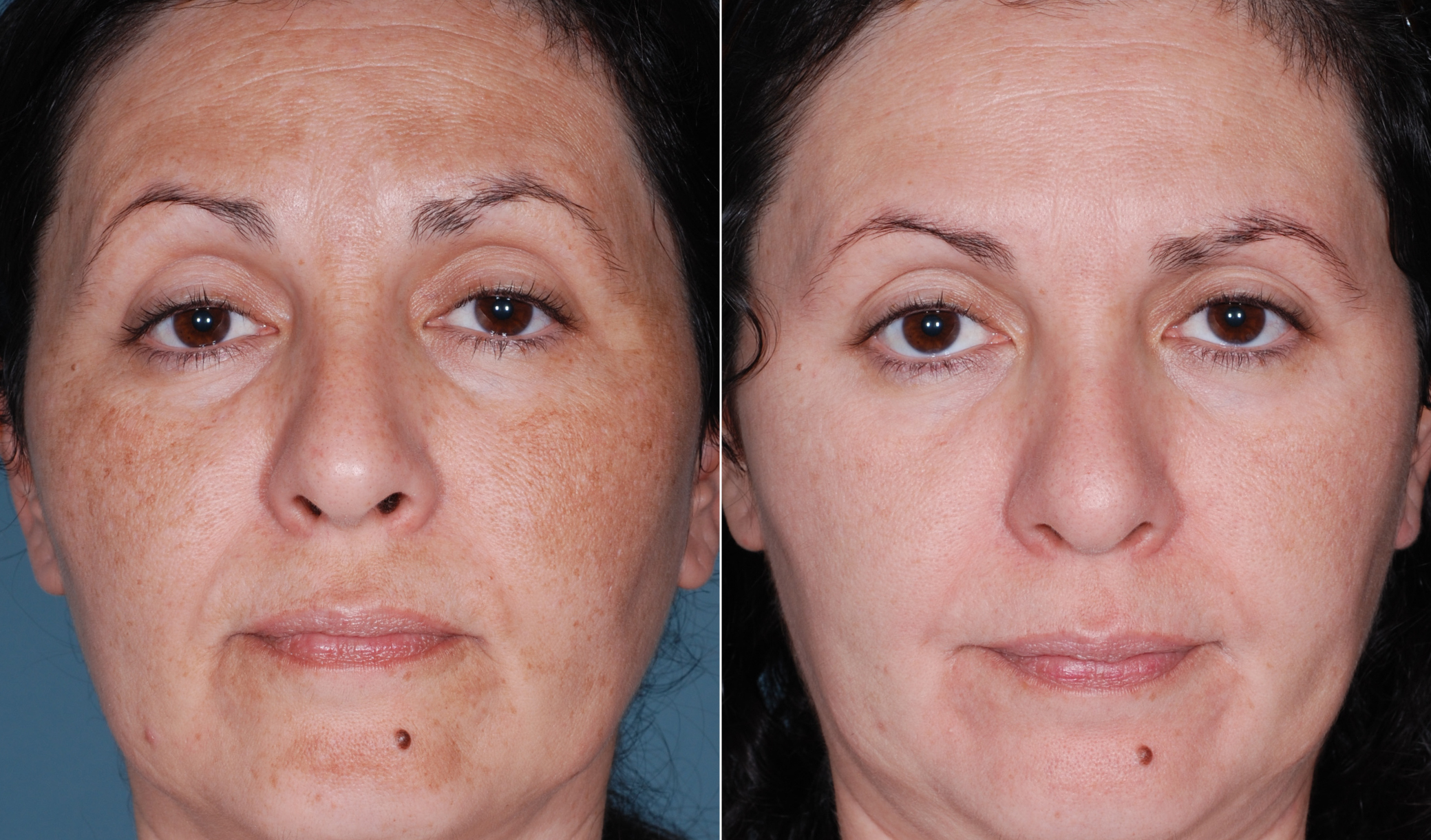 Pigmentation Treatment Amsterdam - Beauty Clinic Lotus