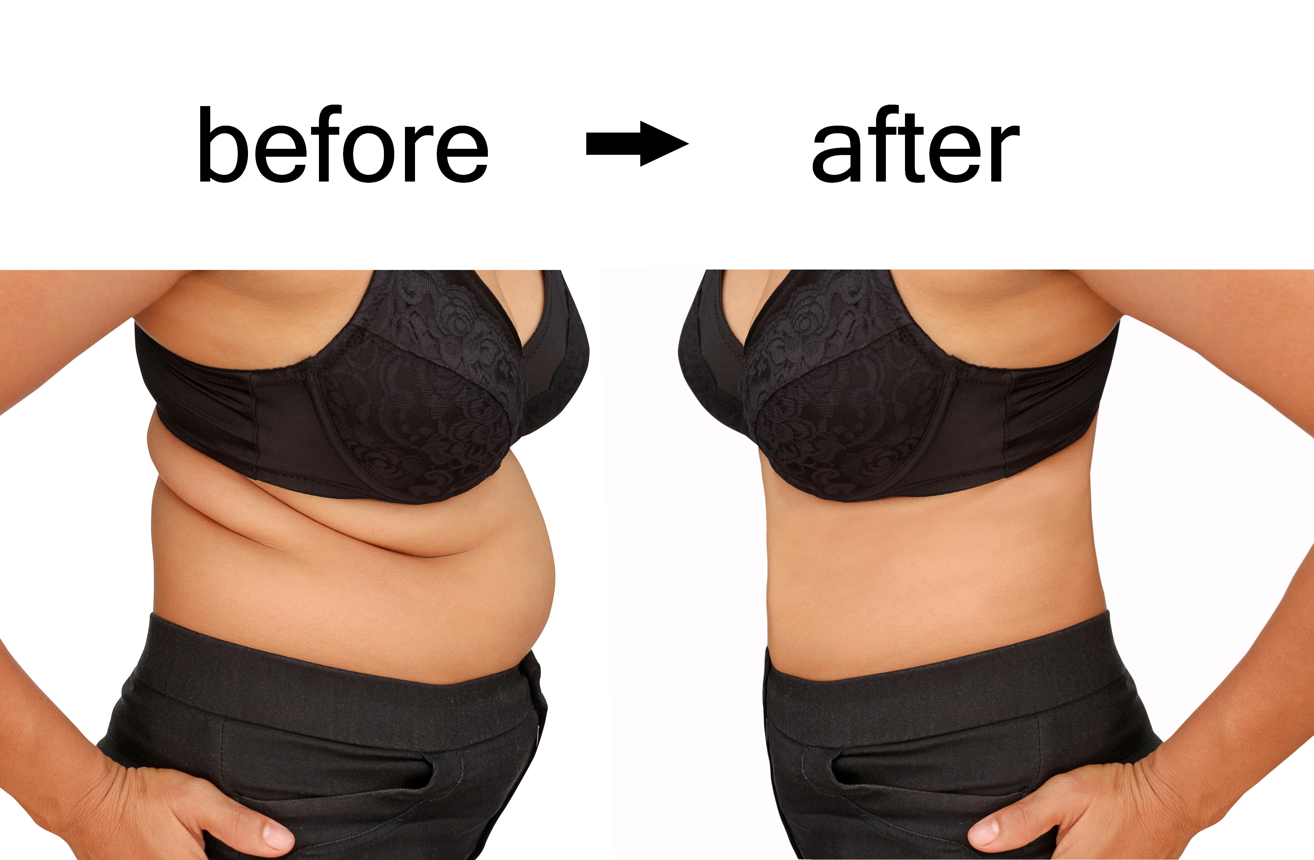 Weight loss spa montana
