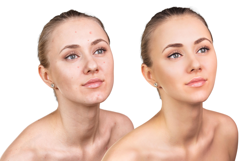hormonale acne behandeling